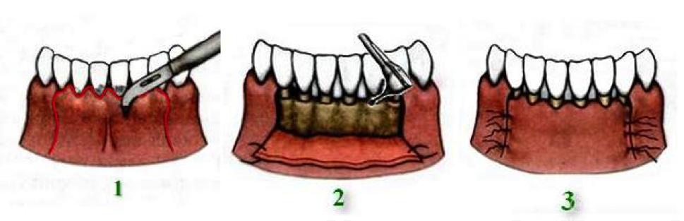 Как лечить зубной карман в домашних условиях